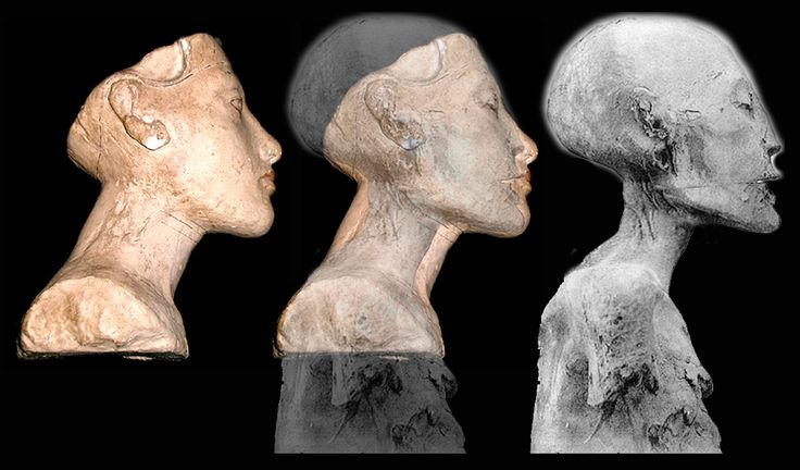 "To test this theory, here are comparisons with the two female Egyptian mummies that are currently vying for the name ""Nefertiti"" ... both from tomb KV35. First is a superimposed image of Mummy 61072, first proposed by Marianne Luban to be Akhnaton's Queen back in 1999, on our sculpture from Adolf Hitler's museum. In June of 2002, Joann Fletcher, caused a great sensation when she announced having discovered the long-lost queen... this same long forgotten mummy from KV35 called the younger…"