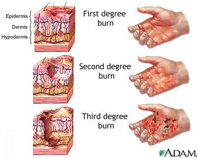 Everyone should know this:  Healing Miracle for burns:   First aid consists to spraying cold water on the affected area until the heat is reduced and stops burning the layers of skin.  Then, spread egg whites on the affected are. The whites dry and form a protective layer and is a natural collagen AND is full of vitamins. Keep repeating every hour so that you have several layers of dried egg whites on the burn. In a few hours youll be pain free and the burn will heal completely very quickly