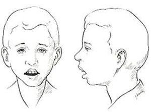 La rinolalia esla alteración en la articulación de algunos fonemas o la ausencia total de ellos asociada a un timbre nasal de voz.Existen tres tipos de rinolalia: abierta, cerrada y mixta.