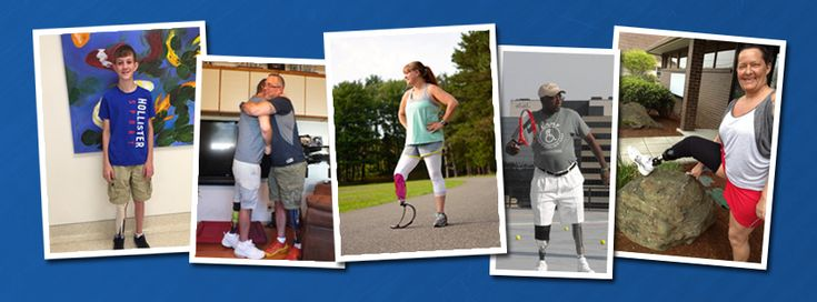 Personalized Tattoos for Prosthetic Limbs, Orthotic Spinal Braces, Leg Braces, Helmets and More.