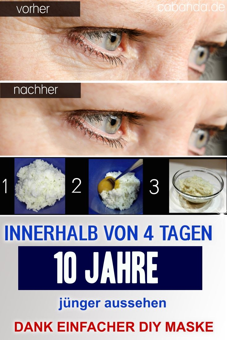 Women are verrückt to this cream, you can be only 4 days 10 years look lets.