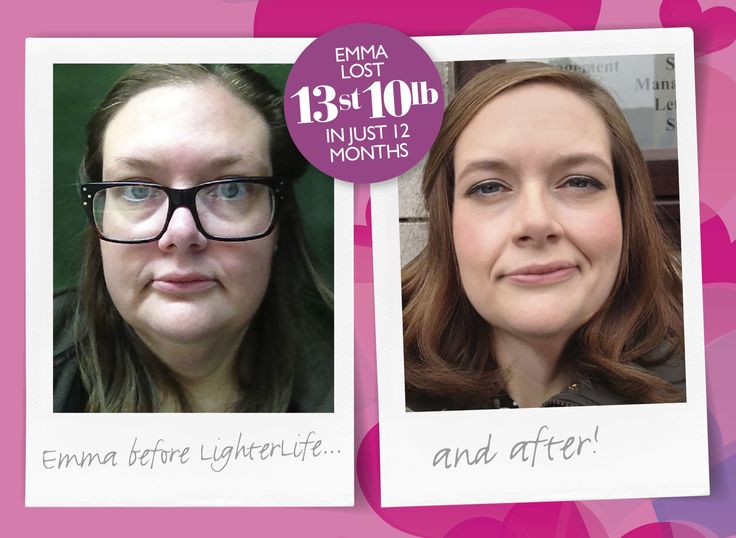 Emma took selfies to help her reach her #LighterPledge. She lost an amazing 13st 10lb in just 12 months. Who else is taking selfies?