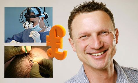 Hair Transplant Cost UK - Your Ultimate Guide. Cost of hair transplants in the UK has never been more affordable, this guide will give you the answers you are looking for.