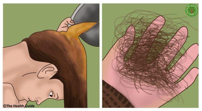 Как прекратить выпадение волос: отрастите длинные волосы быстро и естественным способом! http://bigl1fe.ru/2017/07/25/kak-prekratit-vypadenie-volos-otrastite-dlinnye-volosy-bystro-i-estestvennym-sposobom/
