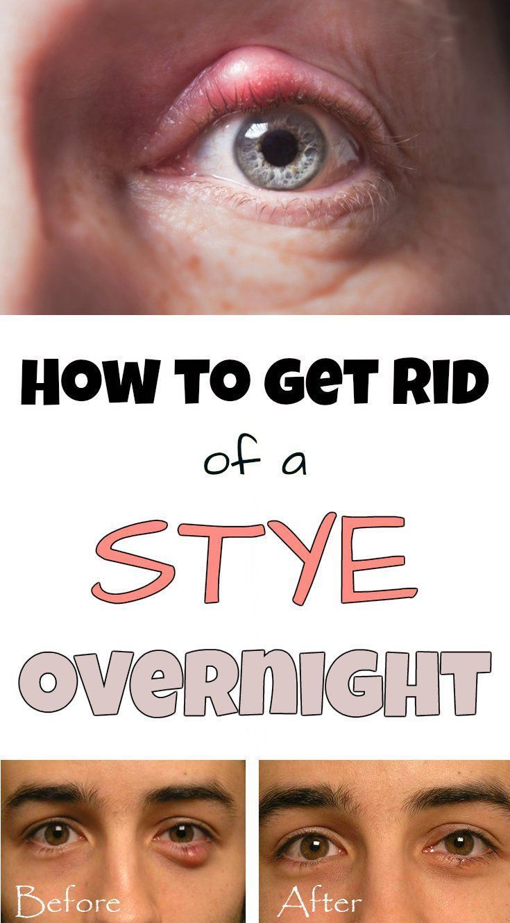 HOW TO GET RID OF A STYE, NATURALLY! in 2020 (With images