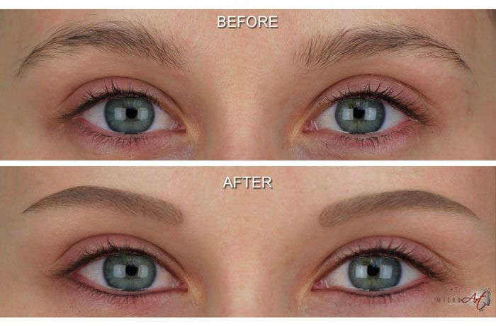 Before Amp After Photos Of Microart Semi Permanent Makeup