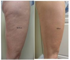 DIY Thigh Wraps For Cellulite. Do this thigh body wrap for 7 days and watch the cellulite disappear!
