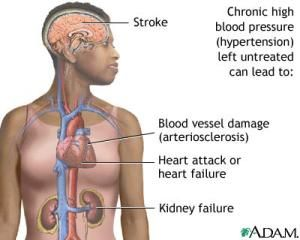 Causes of Kidney Failure: High Blood Pressure and Kidney Failure
