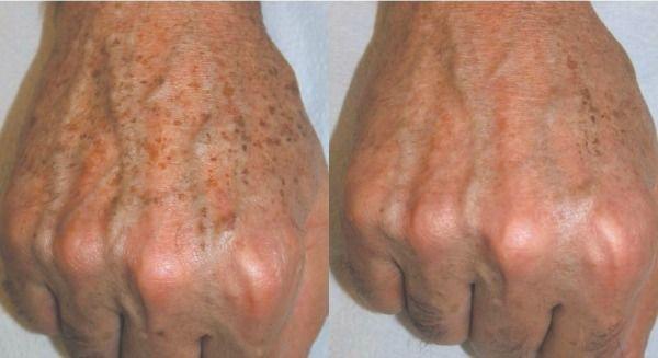Így tüntessük el bőrünk barna elváltozásait otthoni módszerekkel (Szerző: Dr. Tihanyi László )