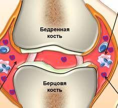 Ревматоидный артрит: комплексные рекомендации по лечению