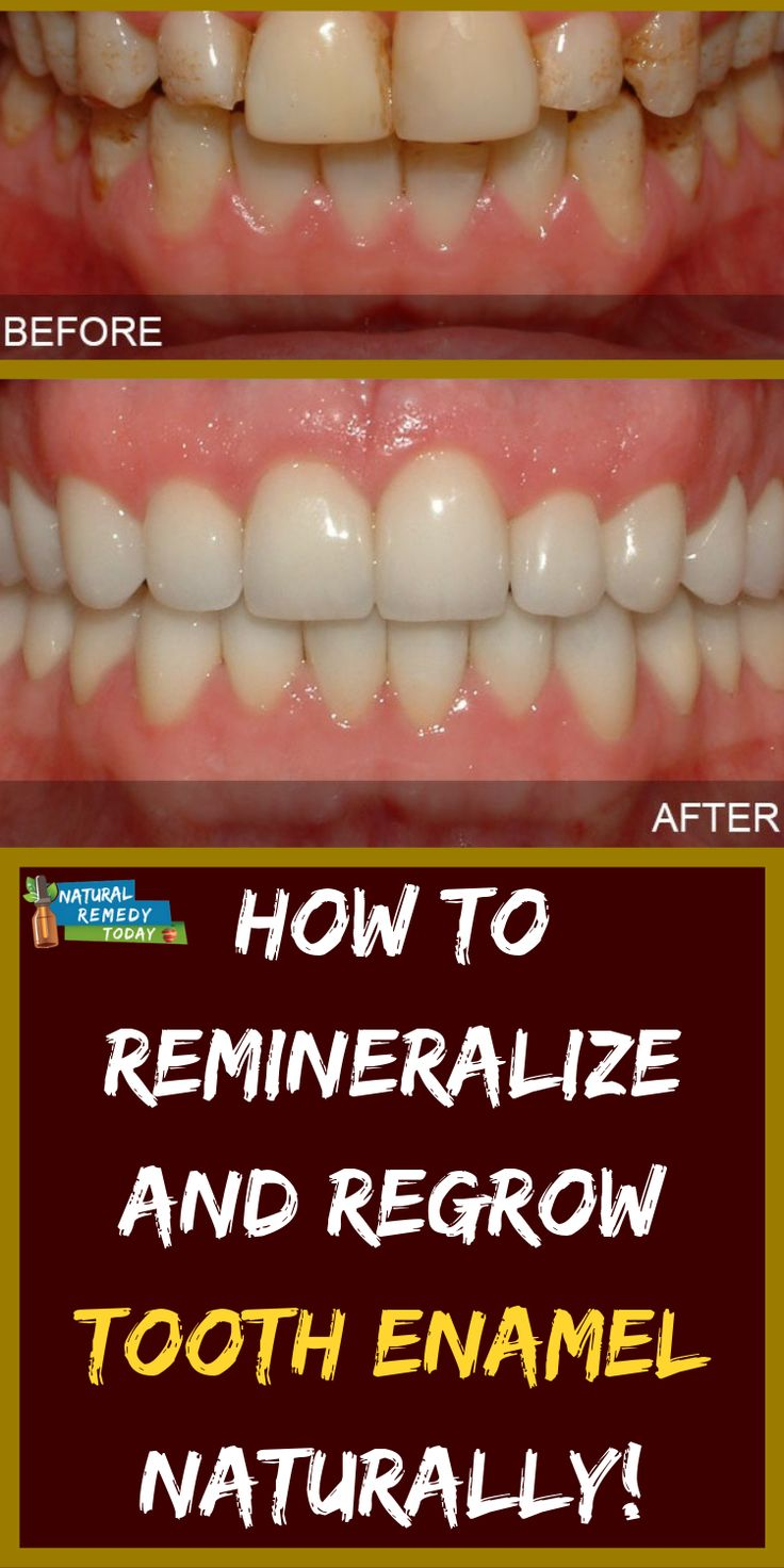How to remineralize and regrow tooth enamel naturally