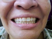 Frugal Shopping and More: Whitening Lightning Review Wow .. its amazing what you can find while searching out images for porcelain veneers and more
