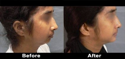 Chin surgery and lower facial implants