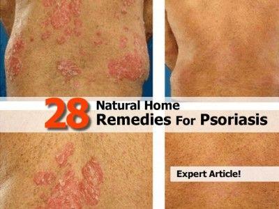 17 Best images about Remedies on Pinterest | Medicine ...