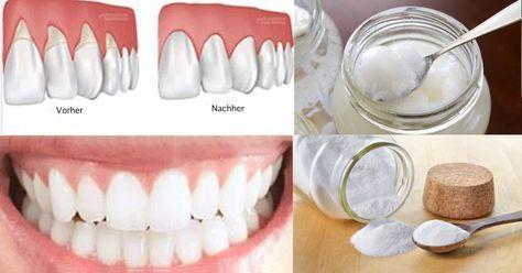 Laut einer aktuellen Mundgesundheitsstudie erkranken ca. drei Viertel aller Deutschen im Laufe ihres Lebens an einer Entzündung des Zahnfleisches. Bakterien und Keime bilden Plaque, was wiederum eine Entzündung des Zahnfleisches hervorruft, die man als Gingivitis bezeichnet. Das Zahnfleisch wird rot, schwillt an und fängt schnell an zu bluten. Es handelt sich um eine mildere Form – Fatos Gute Pin