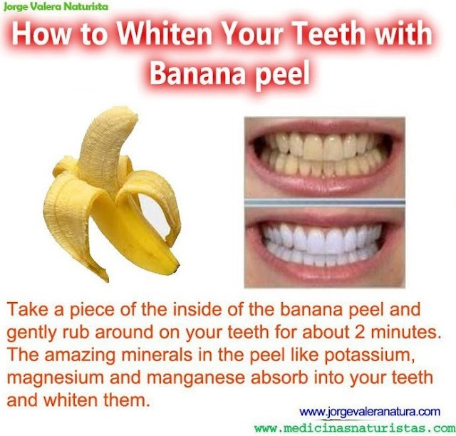How to Whiten Your Teeth with Banana peel