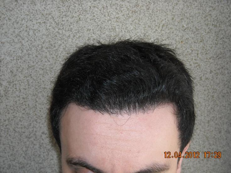 Resultatet 8 månader efter en hårtransplantation med FUT metoden (strip). April 2012