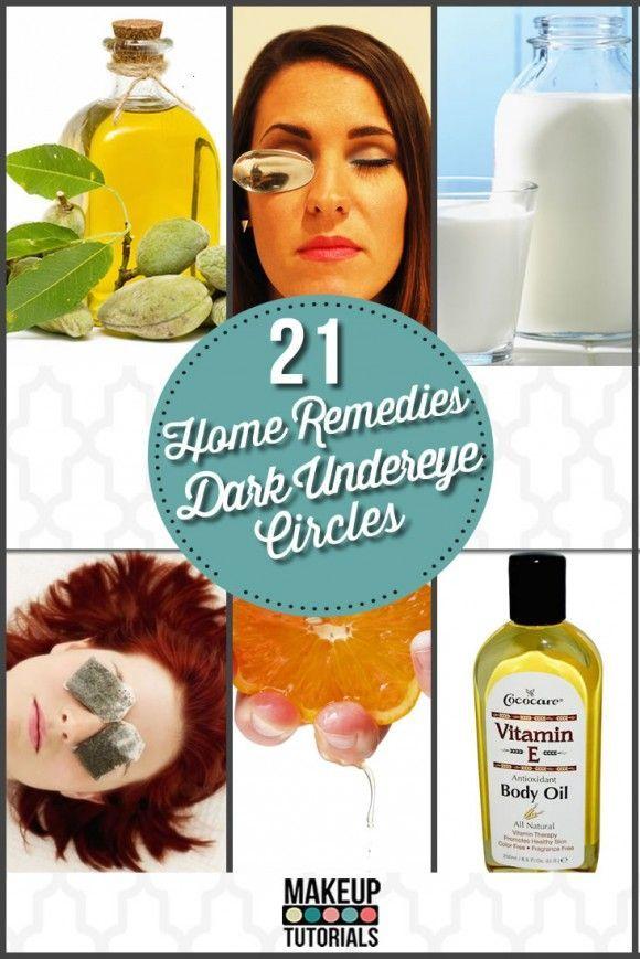21 Home Remedies For Dark Under Eye Circles | DIY Homemade Natural Treatment For Dark Under Eye By Makeup Tutorials http://makeuptutorials.com/makeup-tutorials-21-home-remedies-for-dark-under-eye-circles/