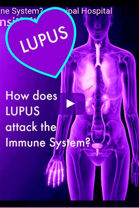 How does Lupus ATTACK? #LupusNewsToday
