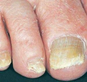 skin-yeast-infection #diabetes