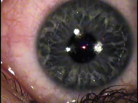 My LASIK/PRK Eye Surgery Part 1 - WATCH VIDEO HERE -> http://bestlasiksurgery.info/my-lasikprk-eye-surgery-part-1/     I did the PRK surgery on both eyes. I did not feel anything. And now my vision has never been clearer. He had done it at Gates, New York in Rochester for Cornerstone Eye Associates.   Video credits to holymoses1222 YouTube channel