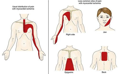 The pain in an acute coronary syndrome is most commonly located in the center or left of the chest, with radiation to the left shoulder and arm, neck, and jaw .  Less commonly, the pain is epigastric, leading the patient (or physician) to mistake it for indigestion. Rarely, ischemic chest pain may be perceived in the right side of the chest or interscapular region. Severe pain that radiates through the chest into the back is more suggestive of aortic dissection than acute coronary syndrome…