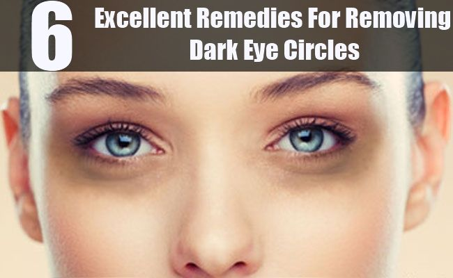 6 Excellent Remedies For Removing Dark Eye Circles