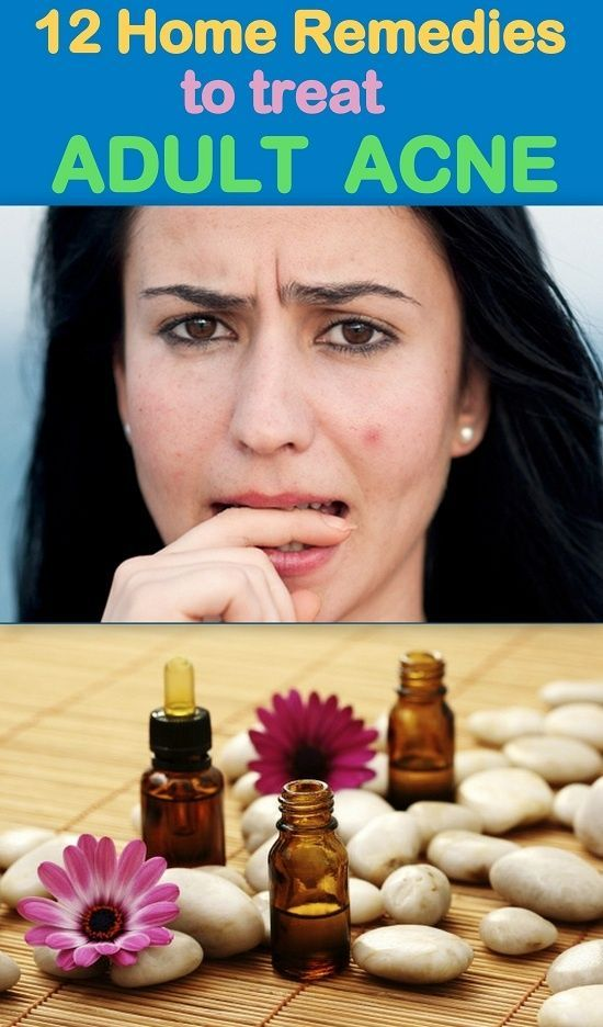 Consider, Adult acne home treatment really. All