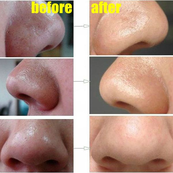 How To Remove Deep Blackheads from Nose #beauty #tips