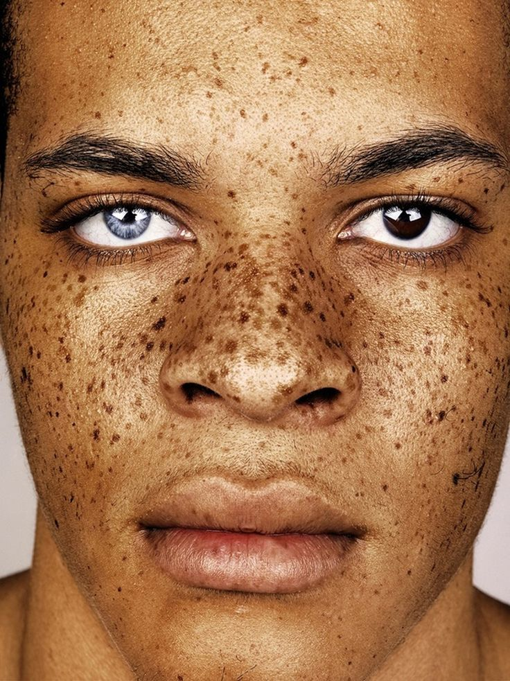 connecting the dots and ​finding beauty in freckles | Heterochromia