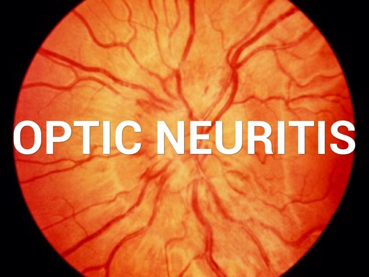 Optic neuritis destroys retinal nerves should we try and save them or do nothing   Andersen MR Roar M Sejbaek T Illes Z Grauslund J.Long-term structural retinal changes in patients with optic neuritis related to multiple sclerosis.Clin Ophthalmol. 2017 Aug 17;11:1519-1525. doi: 10.2147/OPTH.S142206. eCollection 2017. PURPOSE:To evaluate the long-term structural and functional outcome in patients with multiple sclerosis (MS) with and without a history of optic neuritis (ON). METHODS:This was…