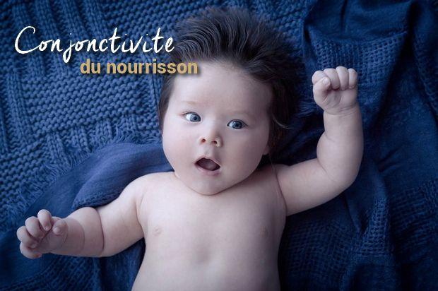 Symptômes de la conjonctivite de bébé