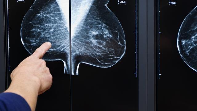 Kunstmatige intelligentie detecteert borstkanker Wetenschappers hebben kunstmatige intelligentie succesvol geleerd om moeilijk vindbare borstkanker te detecteren.