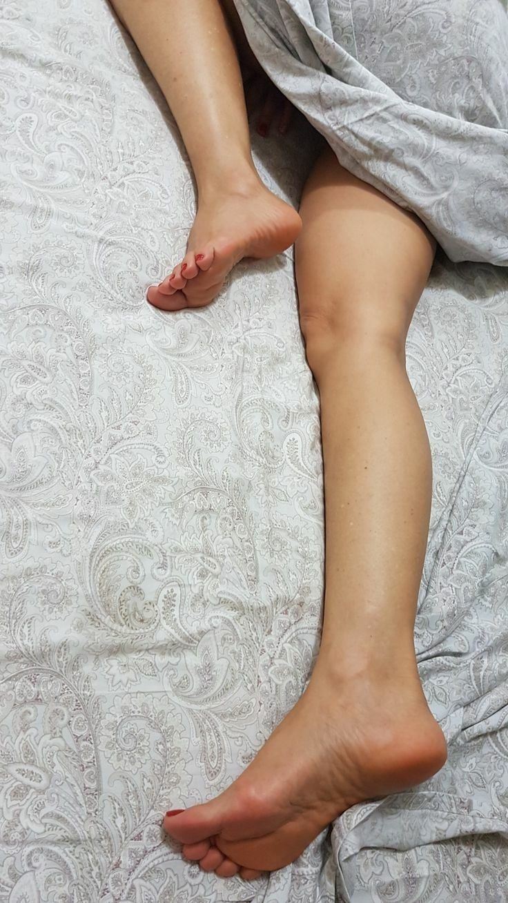 figura varicoze pe picioare