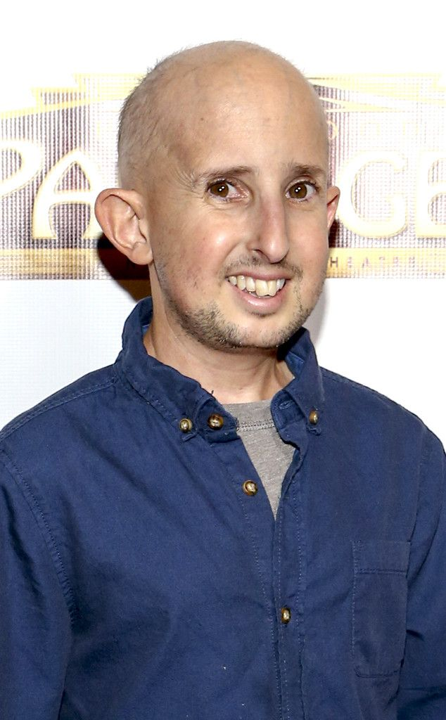 """American Horror Story"" cast weeps for the death of Ben Woolf, the star who died after a head injury. ""Ben was one-of-a-kind, and will never be forgotten,"" Woolf's rep told E! News in a statement. ""The time we all shared together will be remembered forever."""