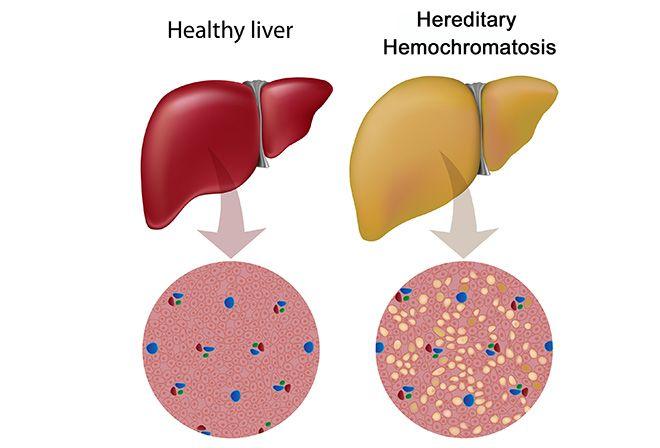 Hemochromatosis Natural Treatment