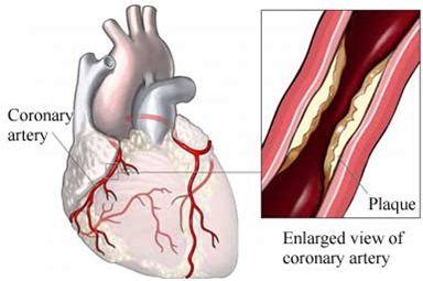 Tipos de trombosis por ubicación del trombo: Trombosis por precipitación:producida principalmente en arterias o el corazón (como se observa en la imagen), se deben al desprendimiento de plaquetas. Son de carácter mural. Trombosis hialina:producida en vénulas o capilares. Suelen ser provocadas por el desprendimiento de plaquetas y fibrinas. Trombosis por coagulación:producida en las venas suelen ser de naturaleza oclusiva y deberse a una mezcla de plaquetas y fibrinas