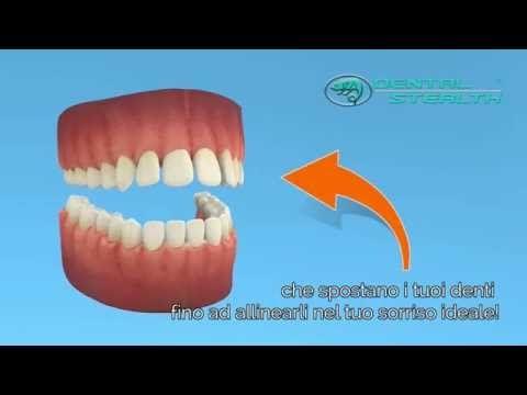 Dental Stealth®   Allineatori Invisibili Raddrizza i tuoi denti senza che gli altri se ne accorgano.  Una serie di mascherine sequenziali trasparenti sposterà i tuoi denti. Apparecchio ortodontico indispensabile per coloro che svolgono un lavoro a contatto con il pubblico.