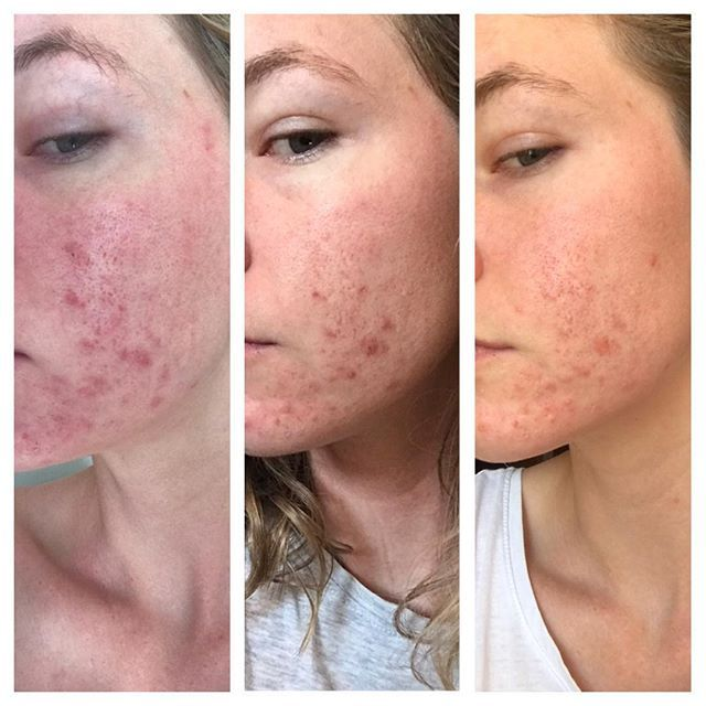 Two weeks ago today I posted about my ongoing battle with my skin, so I thought I would share a little progress picture. Two weeks ago I had also just started my cycle and I'm not going to jump ahead of myself as my skin has a history of throwing another breakout at me when ever it pleases, but two weeks ago, I decided that I was going to try something different, take a different approach and actually makes SO MUCH SENSE. I try my best to feed my body the most natural of foods, so why would…
