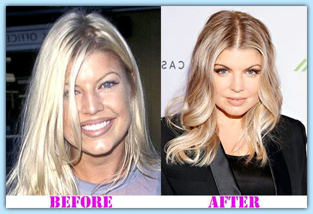 Fergie Plastic Surgery before and after Fergie Plastic Surgery #FergiePlasticSurgery #Fergie #houshow