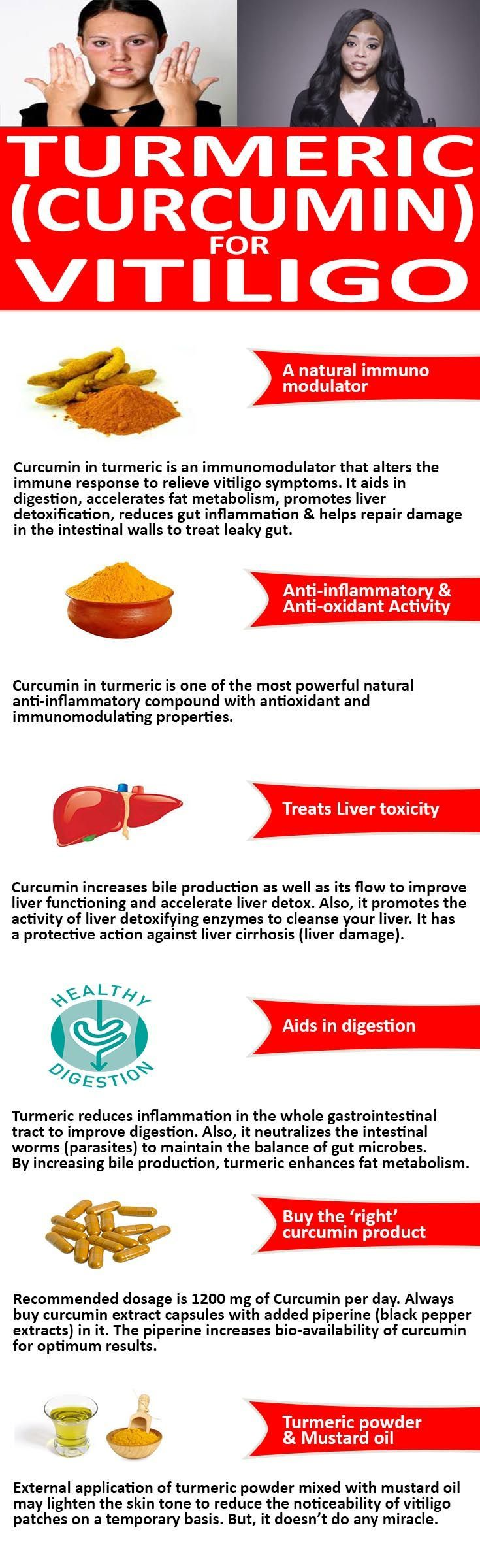 Curcumin in turmeric is a research proven anti-inflammatory, anti-oxidant and immunomodulator natural compound. It promotes liver detox and aids in digestion. A natural supplement to treat leaky gut and manage vitiligo symptoms.  #TurmericVitiligo #CurcuminVitiligo #TurmericLeucoderma #CurcuminLeucoderma