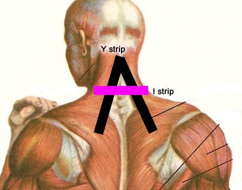 How to Use Kinesio Tapes to Relieve Neck Pain -- via wikiHow.com