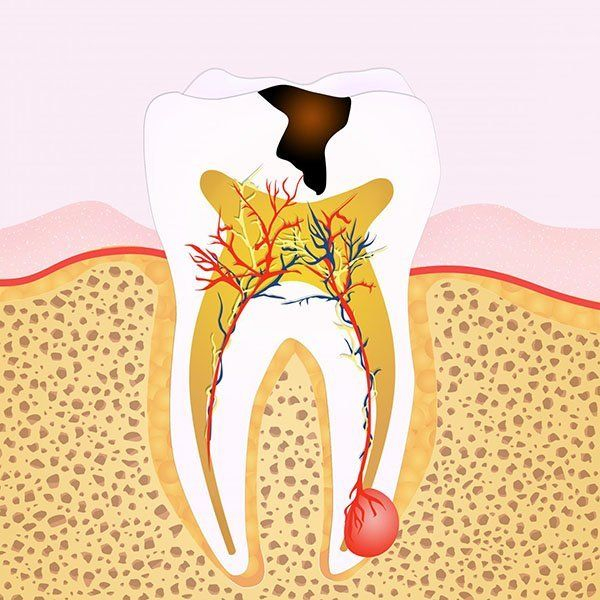 Top 4 Signs You May Need Root Canal Treatment ekdentalsurgery.com.au