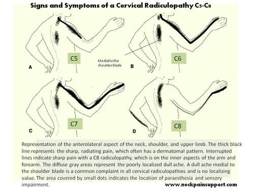 Neck Pain that is a result of a cervical radiculopathy can be severe. Signs and symptoms related to a cervical radiculopathy C5-C8.