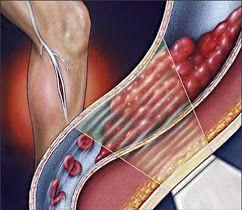 варикоз, варикозное расширение вен, горичник, народное лечение тромбофлебита, тромбофлебит, тромбофлебит лечение, тромбофлебит лечение народ...