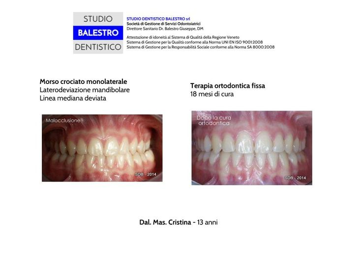 Casi clinici ortodontici Morso crociato monolaterale Laterodeviazione mandibolare Linea mediana deviata http://www.studiodentisticobalestro.com/2014/07/morso-crociato-monolaterale_31.html