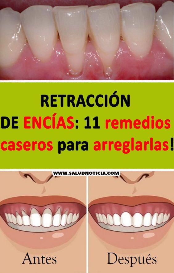 Retracción De Encías 11 Remedios Caseros Para Arreglarlas Encias Remedios Caseros Blanchir Truos Teeth Care Health Tips Body Care