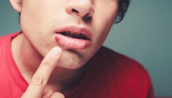 Cold Sore Home Remedies for Cold Sore Treatment