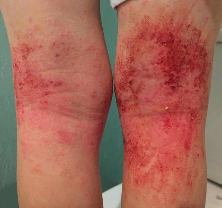 Two Weeks Tsw This Is A Skin Reaction To Using