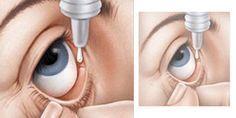 Usa dos gotas de esto en los ojos antes de irte a dormir y tu visión mejorará en no menos de un 60%